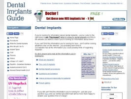 The Dental Implants Guide